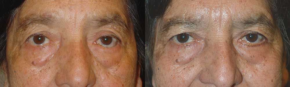 beverly hills lower eyelid entropion surgery.