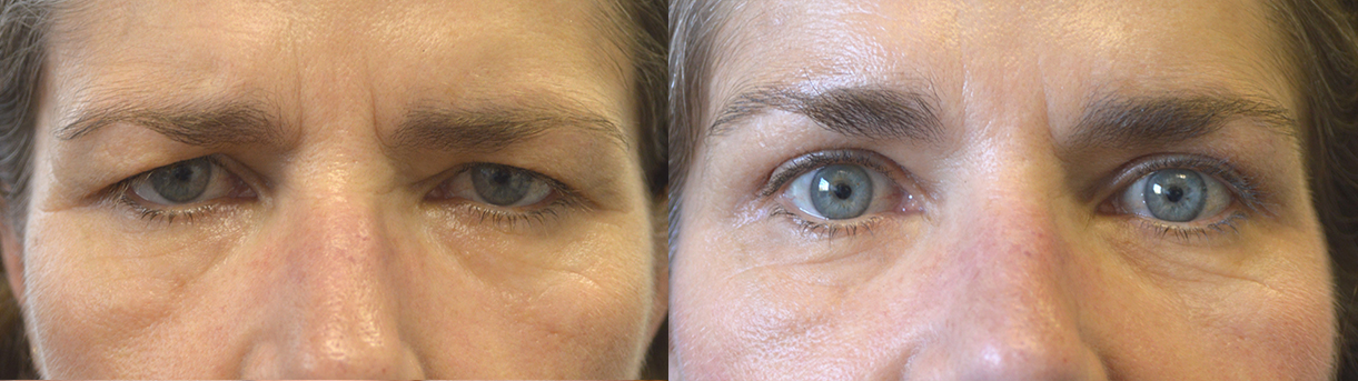 Before (left) and after (right) 55 year old female, with droopy forehead/brows and excess upper eyelid skin, looking tired and angry, underwent endoscopic forehead lift and upper blepharoplasty. Before and 3 months after cosmetic surgery photos are shown.