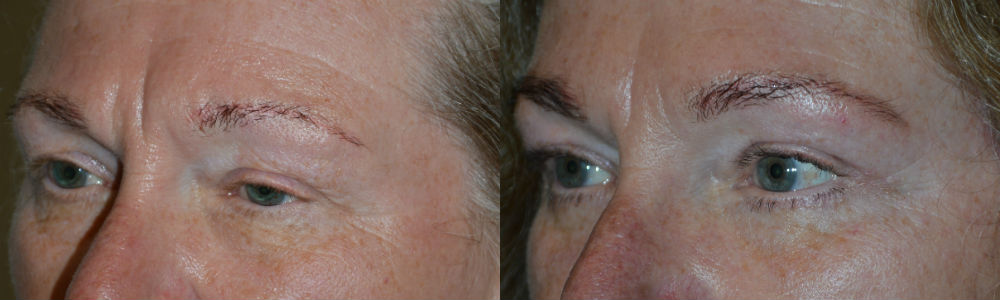 Youthful Eyebrow Surgery