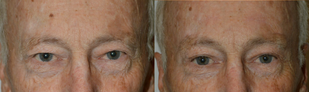 Eyelid Surgery and Browlifting