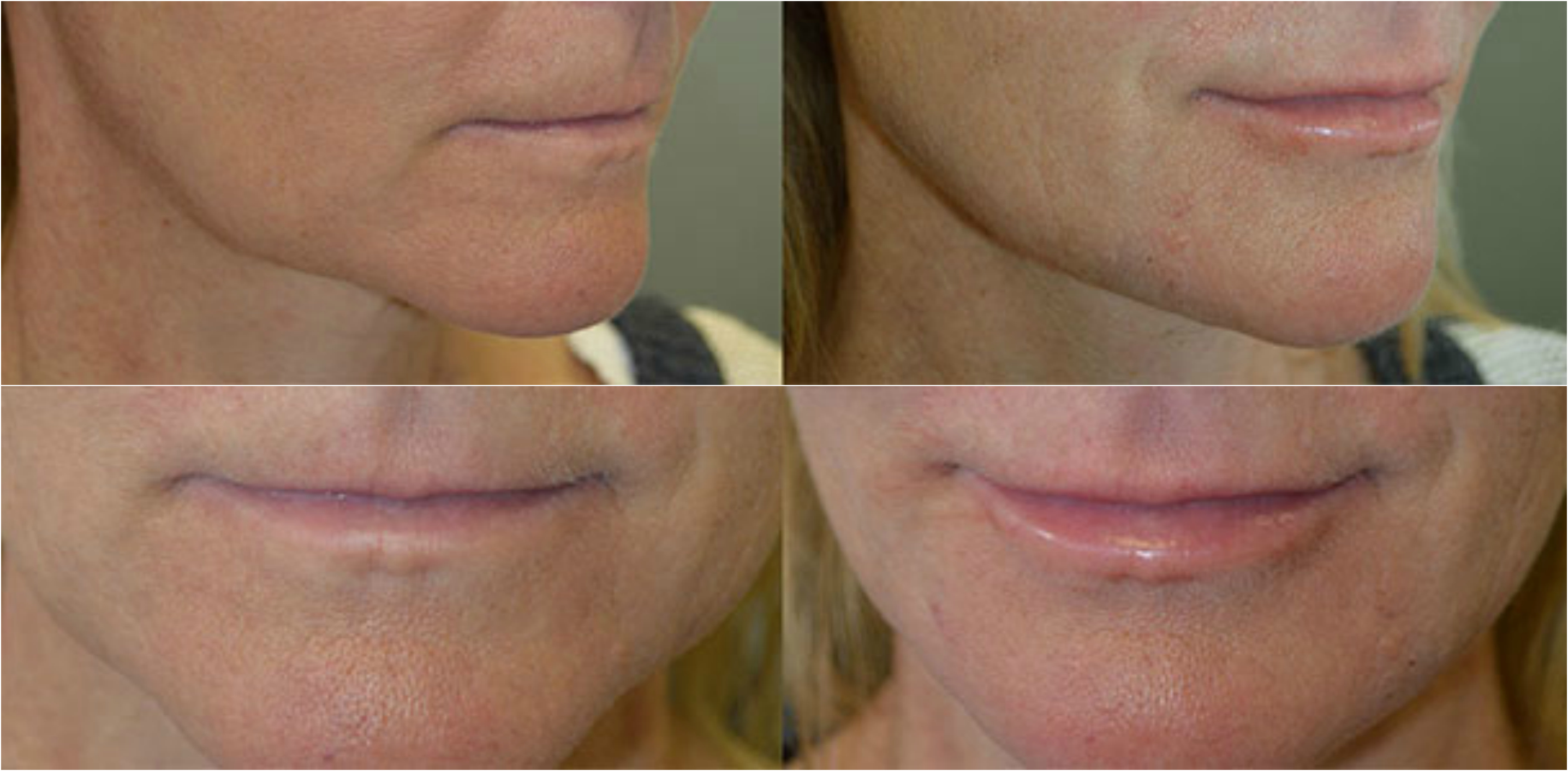 beverly-hills-liquid-facelift