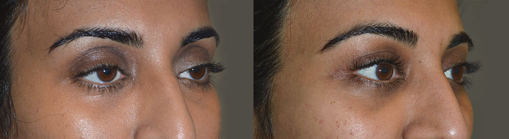 Before (left) 32-year-old female, with droopy upper eyelids (ptosis). After (right) 3 months after cosmetic droopy upper eyelid surgery and fat injection.