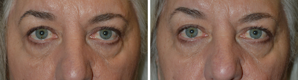 Lower Eyelid Repair in Los Angeles
