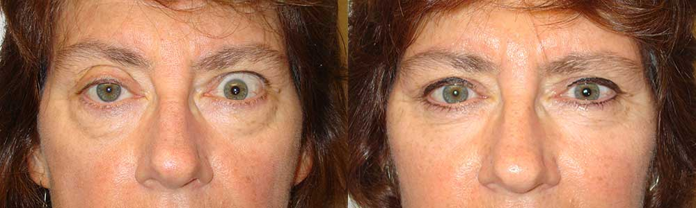 Before (left) and 3 months after (right photo) of right upper eyelid ptosis surgery, left upper eyelid retraction surgery and bilateral quad-blepharoplasty.