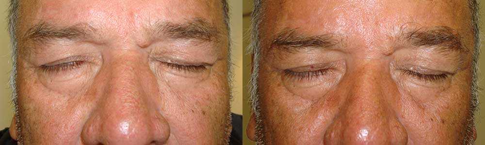 60 year old male, with right eyelid paralytic lagophthalmos (eye not fully closing), underwent right upper eyelid gold weight placement under local anesthesia. The gold weight made the right upper eyelid heavier, which helps it close better. Note resolution of the lagophthalmos in the 3 months postoperative photo (right photo). The gold weight is hidden in the right upper eyelid.