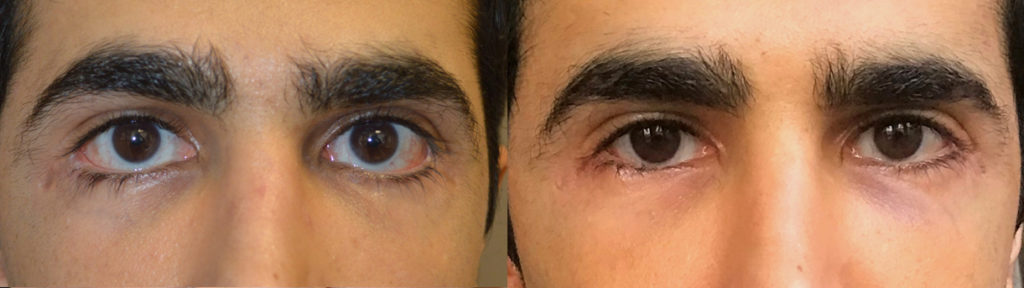 27 year old male, with history of multiple lower eyelid operations with severe lower eyelid retraction, sclera show and eyelid scarring, underwent revision lower eyelid retraction surgery (internal lift, soof lift, alloderm spacer graft, canthoplasty, scar revision). Before and 2 months after revision eyelid surgery photos are shown. (The after photo is a selfie.)