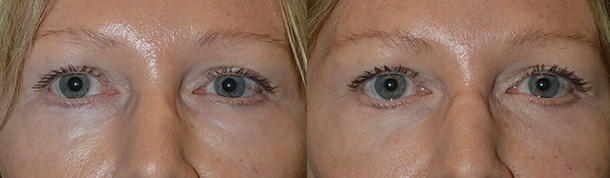 Beverly Hills Lower Eyelid Filler Eyelift