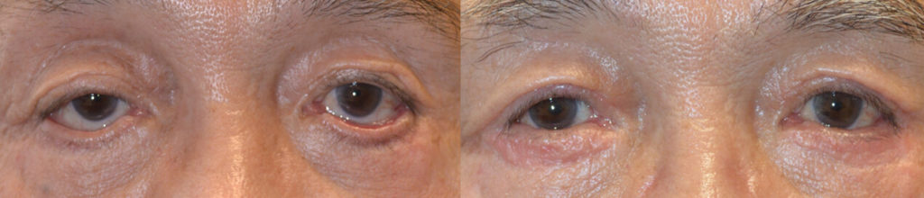 73 year old Asian male, with significant lower eyelid cicactricial ectropion and eyelid scarring after previous blepharoplasty (done by another surgeon), underwent revision eyelid surgery including lower eyelid ectropion surgery with skin graft, revision canthoplasty, revision eyelid ptosis (droopy eyelid) surgery, and revision blepharoplasty. Before and 3 months after reconstructive and cosmetic eyelid surgery photos are shown. Post-blepharoplasty lower eyelid ectropion can occur with transcutaneous lower blepharoplasty and it is prevented by transconjunctival lower blepharoplasty.