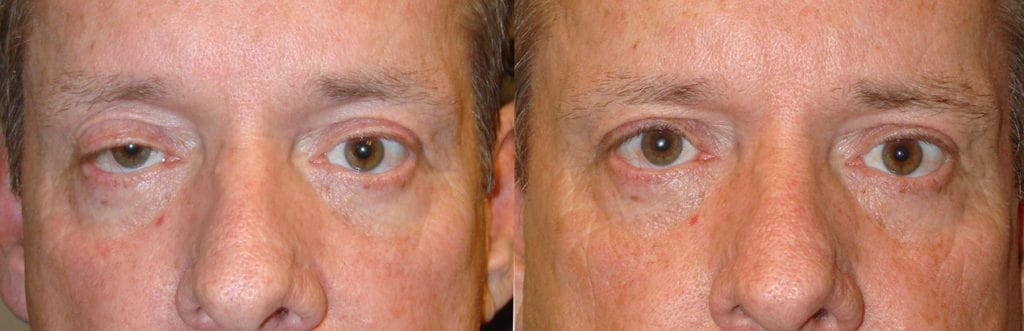 Before eye asymmetry due to right upper eyelid ptosis. After right upper eyelid ptosis surgery with improved eye symmetry.