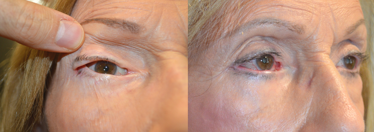 86 year old female, with significant eye irritation from previous canthoplasty, underwent revision right canthoplasty. Before and 3 months after surgery photos are shown.