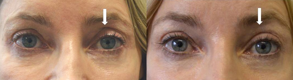 Before eye asymmetry due to left upper eyelid hollowness. After left upper eyelid filler injection with improved eye symmetry.