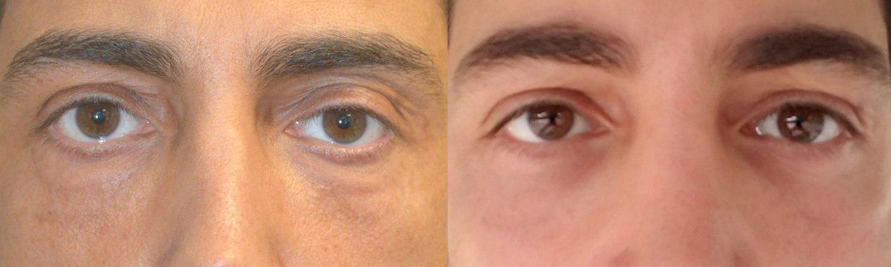 Los Angeles Asymmetric Hollow Eyes, upper eye asymmetry