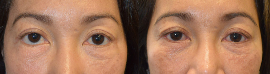 46 year old Asian female, with lower eyelid retraction after previous transcutaneous lower blepharoplasty, underwent revision eyelid surgery to raise the lower eyelids (lower eyelid retraction surgery) using internal eyelid approach with soof lift and internal alloderm graft and canthoplasty. Before and 5 months after oculoplastic surgery photos are shown.