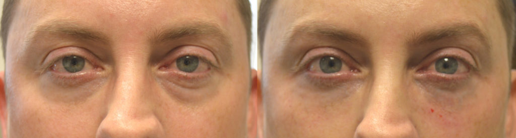 Los Angeles Injectable Eyelid Filler