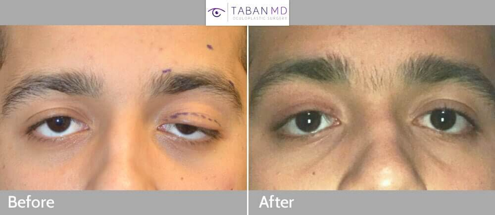 22 year old male, with congenital left upper eyelid ptosis, underwent frontalis sling operation on left eyelid. Before and 3 months after surgery photos results are shown.