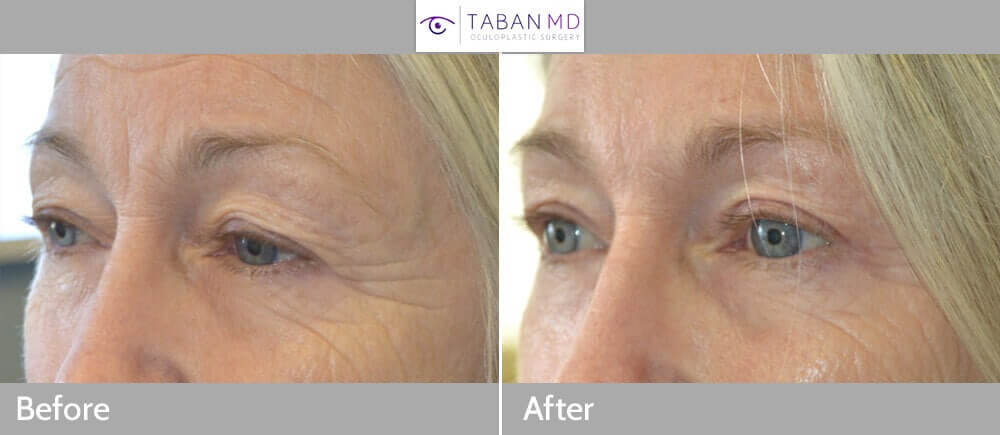 68 year old female, with saggy upper eyelids and brows, underwent cosmetic upper blepharoplasty and lateral pretrichial brow lift. Before and 3 months after eyelid surgery photos are shown. Note her forehead wrinkles improved too since she doesn't need to lift her forehead as much.