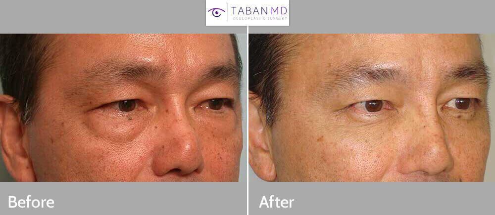 Middle age Asian male, with under eye bags, appearing tired and older, underwent cosmetic lower blepharoplasty (transconjunctival approach) to remove excess eye fat, under local anesthesia in the office. Note natural, rested eye appearance after surgery. Before and 3 months after eyelid plastic surgery photos are shown.