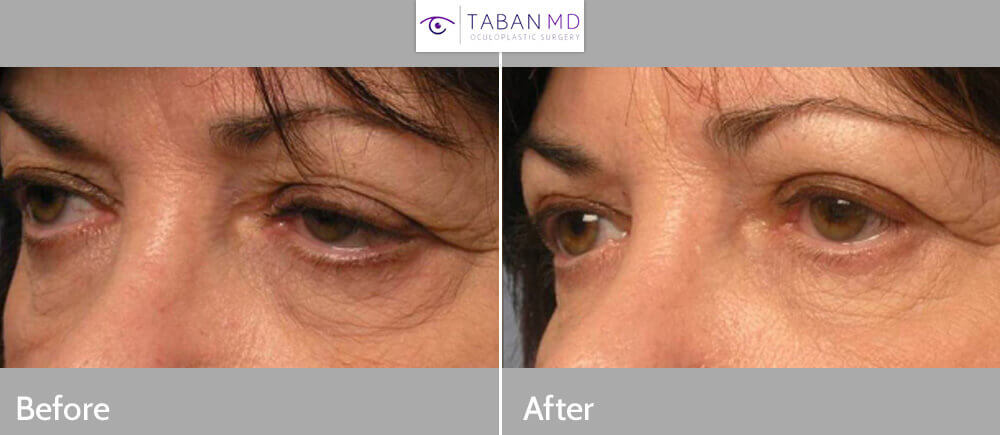 Middle age woman, with eyelid aging, droopy upper eyelids (ptosis), under eye bags/wrinkles, and droopy lower eyelids, underwent cosmetic lateral canthoplasty (plastic surgery on outer corner of the eye), upper and lower blepharoplasty (to remove excess skin and fat) and eyelid ptosis repair (to lift upper eyelids), resulting in more youthful, natural almond shape eyes. Preop and 3 months postoperative photos after cosmetic eyelid surgery are shown.