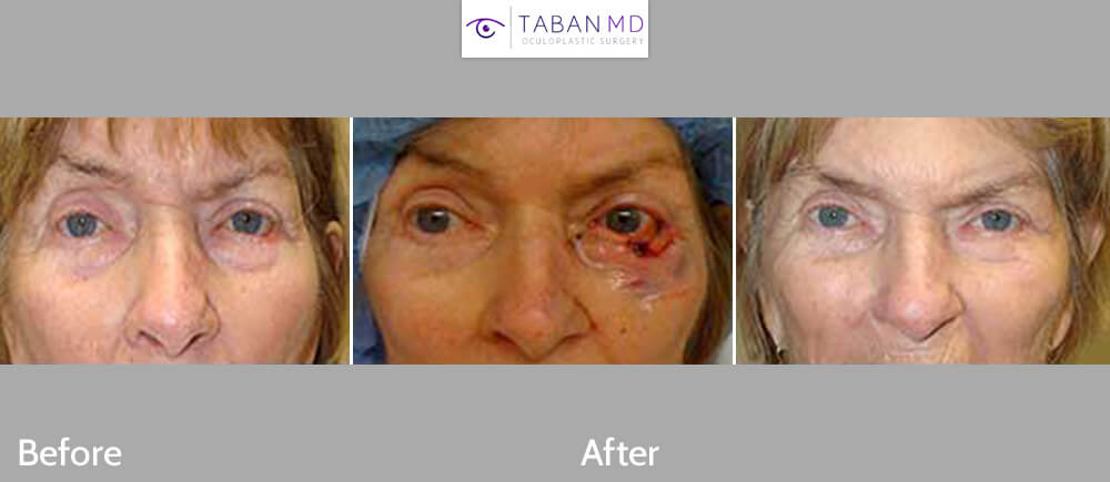 Before (left), intraop (middle) and 3-months after (far right) photos of a patient with large left lower eyelid skin cancer Mohs resection and reconstruction.