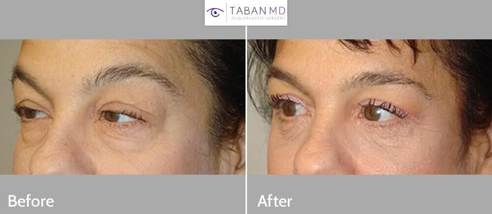Before (left) and 3 months after (right) quad-blepharoplasty and blepharoptosis surgery.