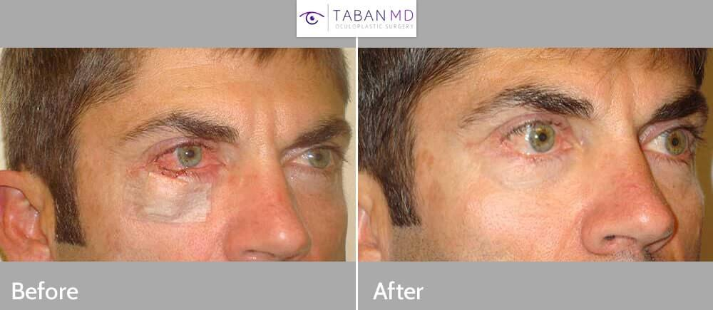 40 year old male, with right lower eyelid defect after Mohs procedure to remove right lower eyelid basal cell carcinoma, resulting from sun damage in light skin individual (right photo). Note nearly half of the lower eyelid is missing. He then underwent right lower eyelid skin cancer reconstruction under local anesthesia. Before and 3 months postoperative photos are shown.