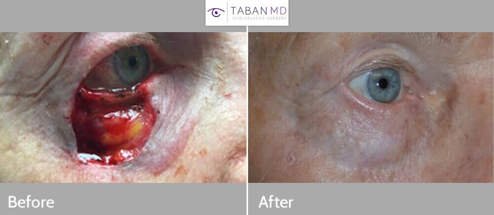 80+ year old woman, with near total right lower eyelid defect after eyelid skin cancer (basal cell carcinoma) excision. She underwent eyelid reconstruction using lateral flap and eyelid skin graft under local anesthesia. Note natural appearing results with minimal scarring, and normal eye function.
