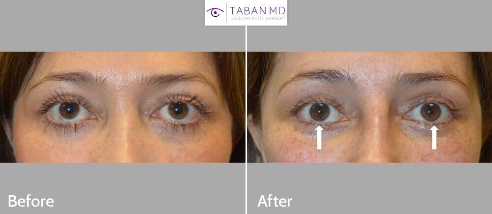 49 year old female, from Mexico City, underwent corrective lower eyelid retraction surgery after previous transcutaneous lower blepharoplasty. Before and 2 months after revision eyelid surgery photos are shown.