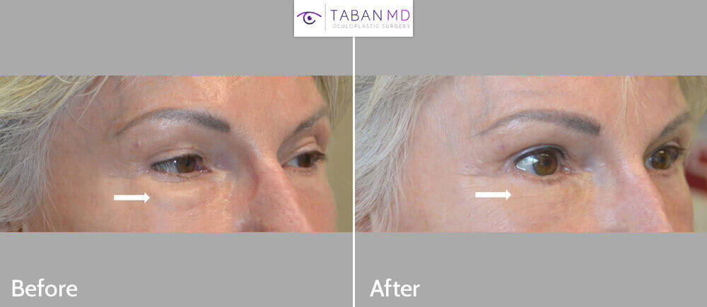 62 year old female, with history of prior under eye fat transfer (eyelid fat injection) resulting in fat lumps underwent revision lower blepharoplasty with removal of fat granuloma lumps. Before and 2 months after revision cosmetic eyelid surgery photos are shown.