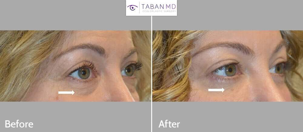 48 year old beautiful woman underwent lower blepharoplasty (transconjunctival technique with fat repositioning plus skin pinch) to give more youthful, rested eye appearance.