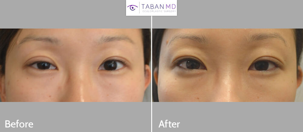 30 year old Asian female, with right upper eyelid ptosis (droopy eyelid) underwent internal (scar-less) right upper eyelid ptosis surgery. Before and 2 months after eyelid ptosis correction photos are shown.