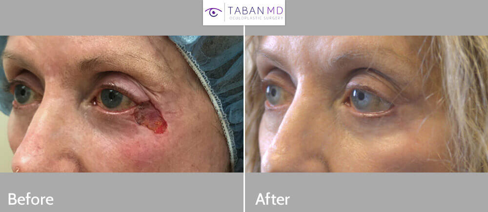 77 year old female, underwent Mohs surgery to remove large basal cell carcinoma from the eyelid and cheek, followed by eyelid reconstruction. Before and 3 months after eyelid skin cancer reconstruction photos are shown.