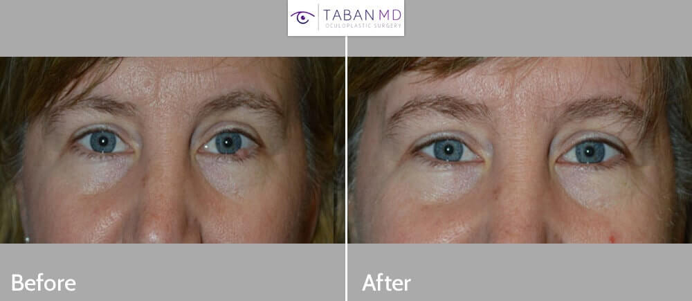 Middle age woman with large benign left lower eyelid lesion at the lash line. The eyelid lesion was excised under local anesthesia in the office, without requiring any stitches. Before and 2 weeks after photos are shown.