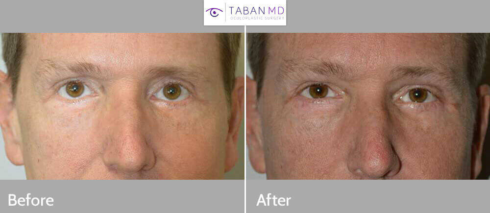 Eyelid Corner Slant Treatment in LA