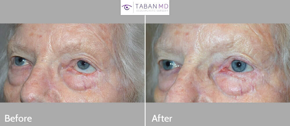70+ year old female, with left lower eyelid retraction and inability to close her left eye (lagophthalmos) secondary to previous skin cancer surgery. She underwent total left lower eyelid reconstruction (using Hughs flap from the upper eyelid) and eyelid retraction surgery with skin graft. Preop and 3 months postoperative photos are shown.