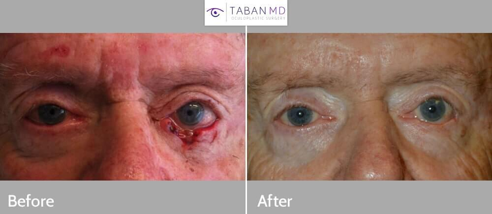 70+ year old male, with large left lower eyelid defect after Mohs procedure to remove eyelid skin cancer (basal cell carcinoma). He underwent left lower eyelid skin cancer reconstruction. Before and 3 months postoperative photos are shown.