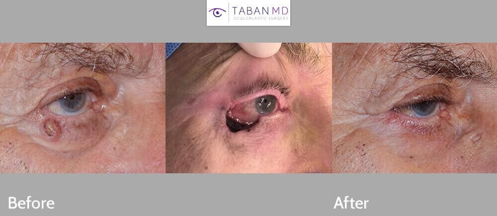 Before (left) 84 year old male with right eye fold basal cell carcinoma. (Middle) Immediately after right lower lid skin cancer removal. After (right) 2 months after right lower eyelid cancer reconstruction.