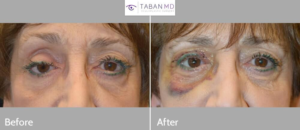 75 year old female, with history of right eye removal with poor eye prosthesis fit and appearance, underwent initial right socket silicone implant placement followed later by right upper eyelid ptosis repair. Before and 1 week after eyelid ptosis repair photos are shown.