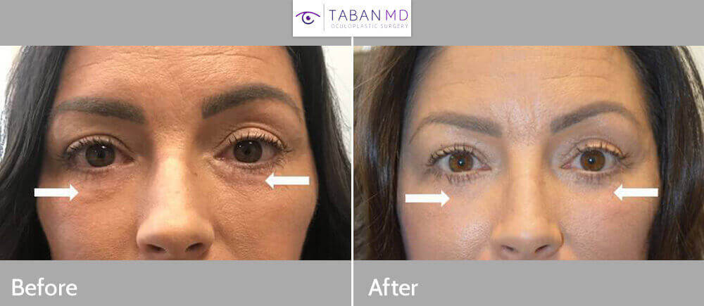 47 year old female, with history of fat injection under eyes creating lumps, underwent revision lower blepharoplasty with removal of injected fat lumps and granulomas. Before and 2 months after surgery photos are shown.