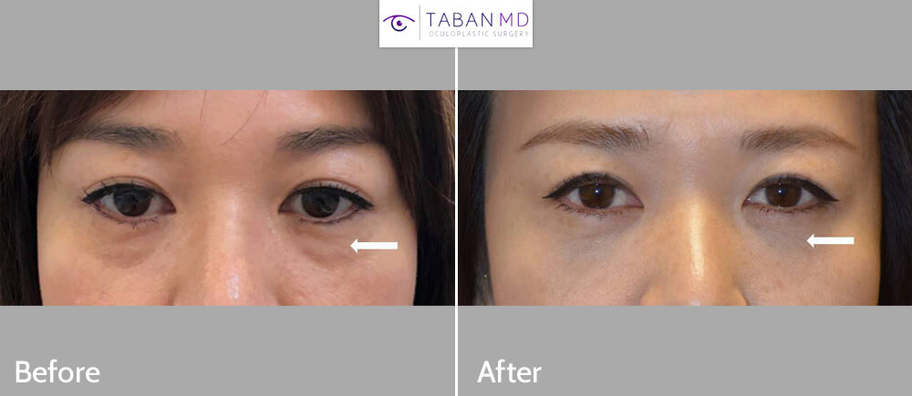 38 year old Asian female, with under eye fat bags and tear trough hollowness, underwent scarless transconjunctival lower blepharoplasty with repositioning of the eye fat bags to the surrounding hollow area, creating more smooth under eyes with natural results. Before and 1 month after lower blepharoplasty photos are shown.