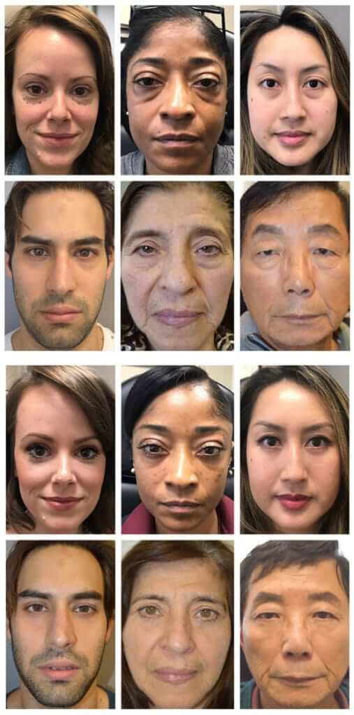 Before/After lower blepharoplasty of mix of patients with different ages, sex, and ethnicity, depicting the benefit of lower blepharoplasty irrespective of those factors.