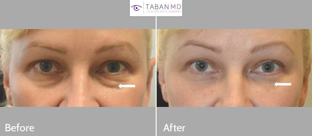 44 year old female, looking tired due to under eye fat bags and dark circles, underwent transconjunctival lower blepharoplasty with eye fat bags repositioning plus skin pinch. Before and 6 weeks postop photos are shown.