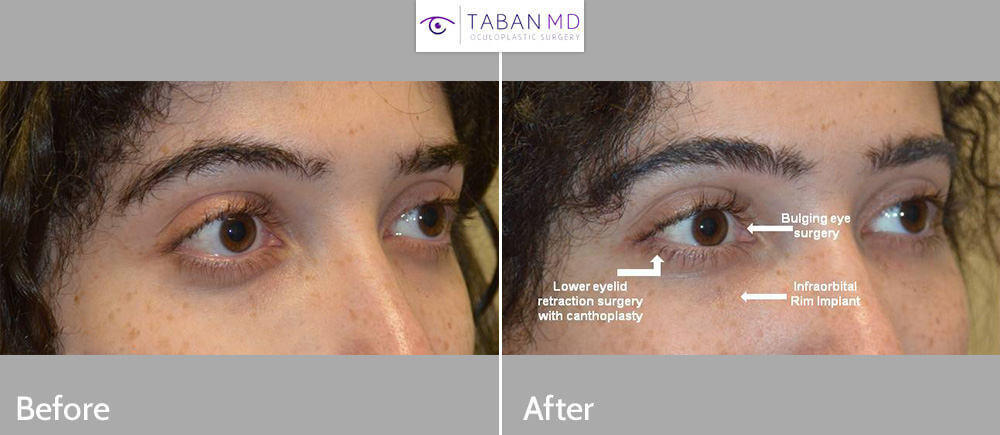 Young transgender female underwent eye reshaping surgery to have less bulging and more uptured almond eyes. Procedure included scarless orbital decompression, lower eyelid retraction surgery with canthoplasty (almond eye surgery), and customized infraorbital rim silicone implant.