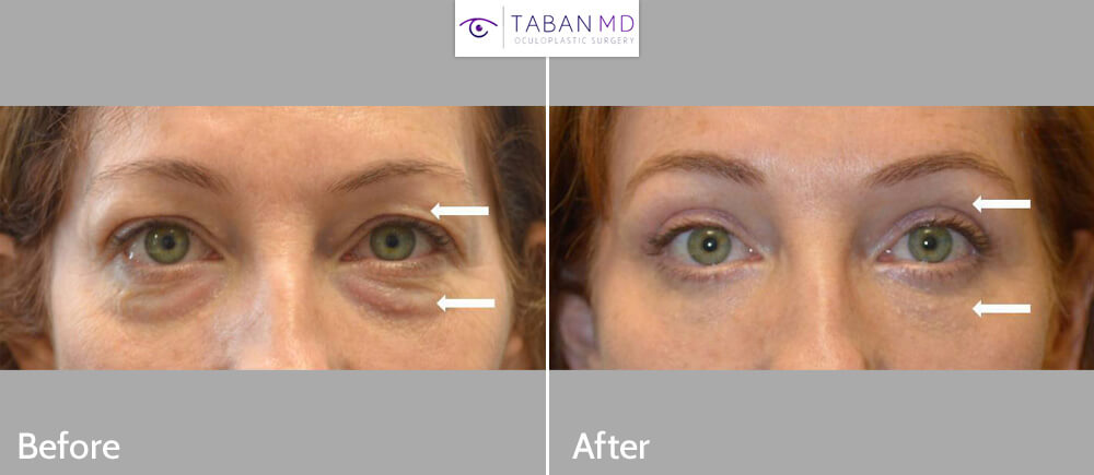46 year old woman, looking tired and older, underwent upper blepharoplasty and lower blepharoplasty (transconjunctival technique with fat repositioning and skin pinch). Note more youthful results.