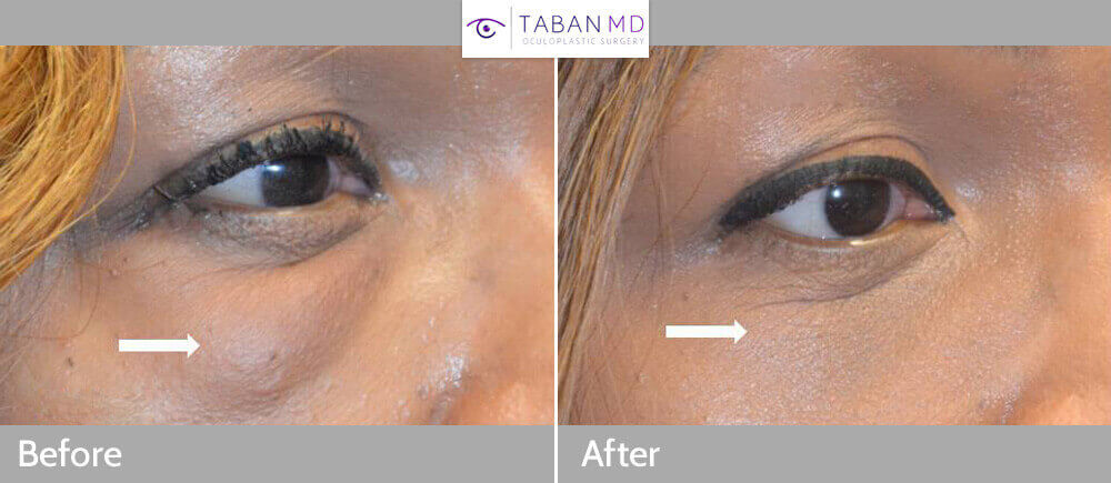 Middle age African American female, with history of eyelid fat injection (by another surgeon) causing significant lumps, underwent scarless technique (from inside the lower eyelid) to remove fat lumps or granulomas. Before and 1 month after revision eyelid surgery photos are shown.