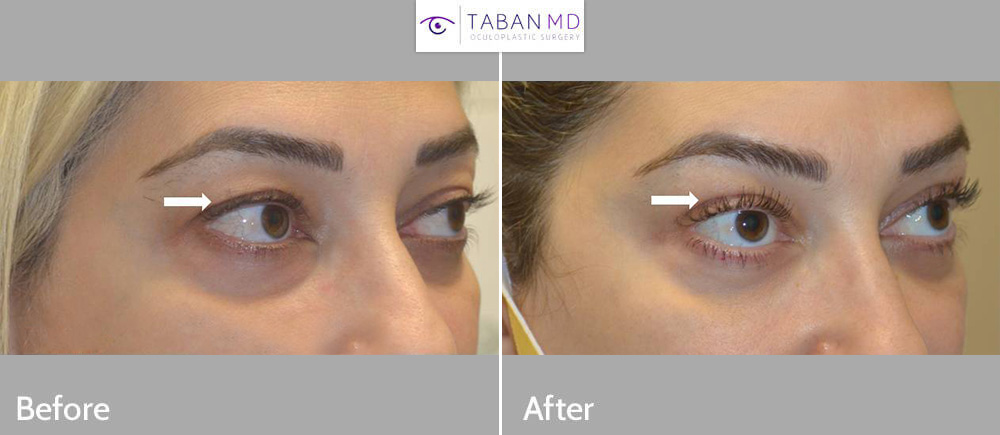 Young woman, with loose upper eyelid skin and hollowness, underwent combined upper blepharoplasty and upper eyelid filler injection, resulting in more youthful eye appearance.