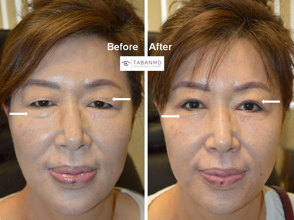 65 year old Asian female, underwent Asian upper blepharoplasty (double eyelid surgery) and lower blepharoplasty, resulting in more youthful, rested, natural eye appearance.