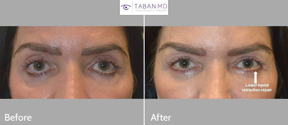 48 year old female underwent lower eyelid retraction repair to correct botched lower blepharoplasty that had resulted in lower eyelids being pulled down.