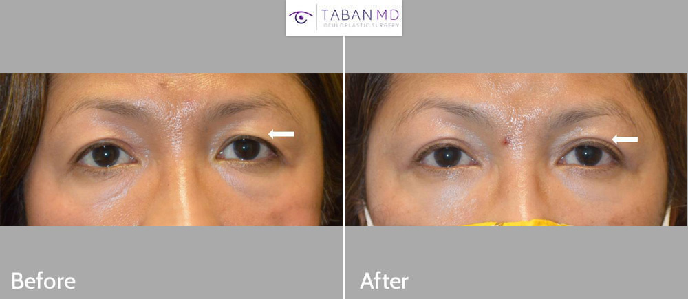 Middle age Asian woman underwent Asian upper blepharoplasty (double eyelid surgery) with natural results.