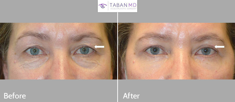 53 year old female underwent upper blepharoplasty to improve saggy hooded upper eyelids.