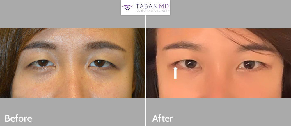 Young woman underwent lateral canthoplasty to create more upturned or positive canthal tilt or cat eye appearance.